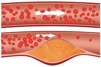 Vysoká hladina cholesterolu způsobuje jeho postupné ukládání do cévních stěn. To pak omezuje průtok krve a může vést až k infarktu.