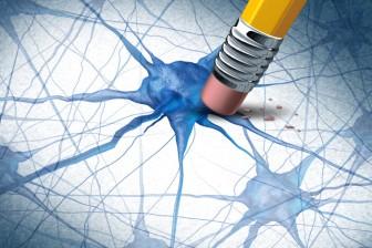 Na Parkinsonovu chorobu v současné době neexistuje léčba. Je možné pouze použít podpůrné prostředky, které zmírňují průběh nemoci.